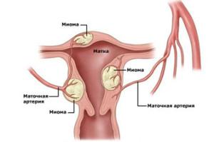Рост миомы матки