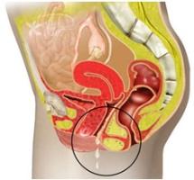 Медикаментозное лечение кольпита: препараты
