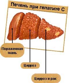 Метаболизирующихся в печени