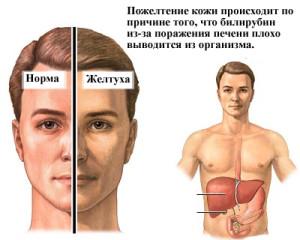 Как определить, есть ли у вас гепатит C