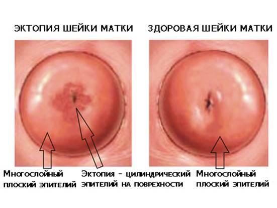Эктропион шейки матки у женщин (фото) - что это такое?