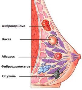 Фиброзно-кистозная мастопатия молочных желез: симптомы, лечение