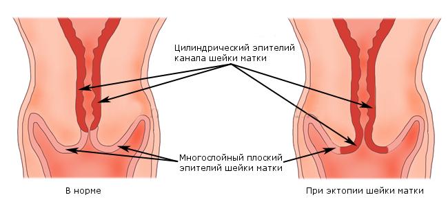 Заболевание — эктропион шейки матки, в чем проявляется?