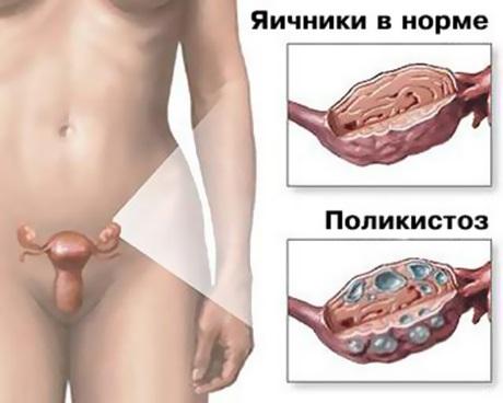 Синдром поликистозных яичников — фото и причины заболевания