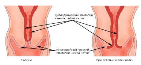 Особенности цилиндрического эпителия, которые свойственны для эктопии шейки матки