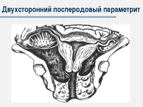 Параметрит после родов — причины заболевания