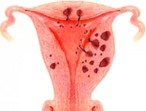 Какими препаратами лечить эндометриоз матки: Дюфастон, Жанин? Отзывы пациентов и врачей о препаратах