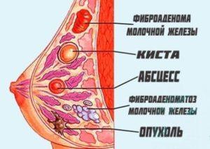 Стадии заболеваний и симптомы