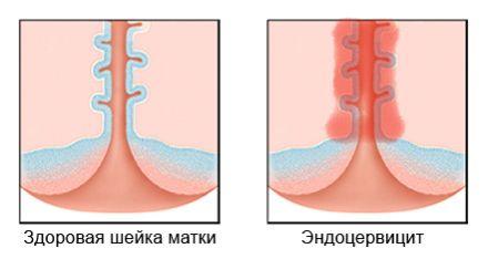 Эндоцервикс эндометрия: чем опасен и способы лечения