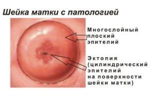 Цилиндрический эпителий в экзоцервиксе: методы лечения