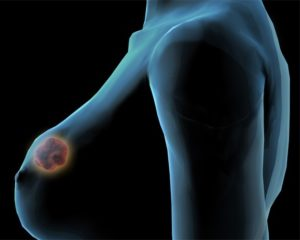 Признаки диффузного фиброаденоматоза молочных желез, и методы лечения заболевания