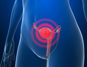 Почему появляется миоматозный узел
