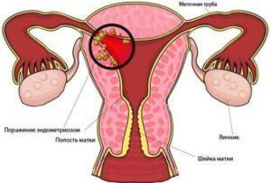 За и против установки контрацепции внутри матки
