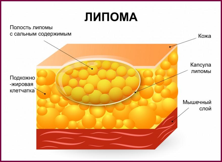 Фибролипома молочной железы: что это такое