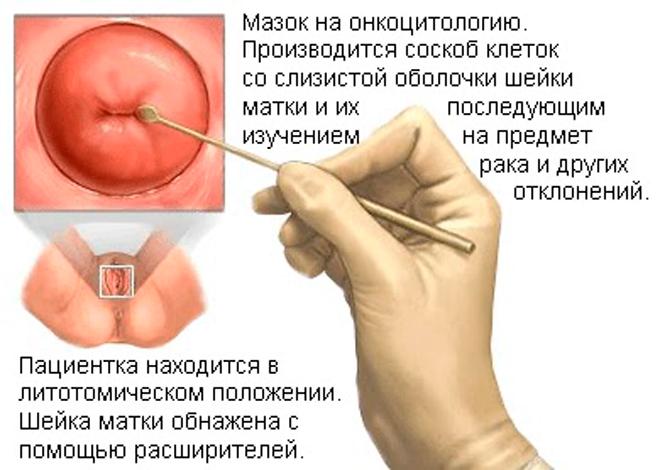 что такое онкоцитология в гинекологии