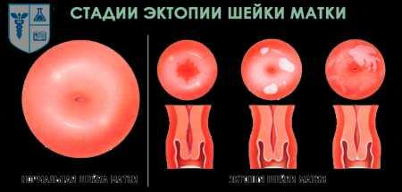 эктопия цервикального канала