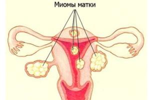 Признаки и симптомы миомы матки