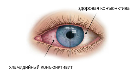 Симптомы хламидиоза в горле, глазах и легких