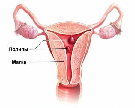 Полип матки и шейки матки: первые симптомы и лечение
