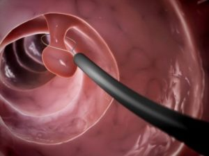 Полипы в матке: удаление или лечение без операции?