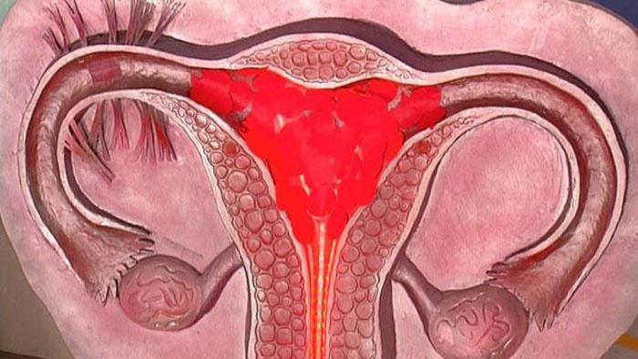 Почему бывают маточные кровотечения у женщин, и как их остановить?