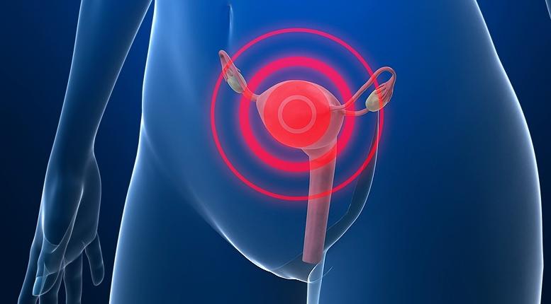 Как проявляется хронический метрит у женщин, и как его лечить?