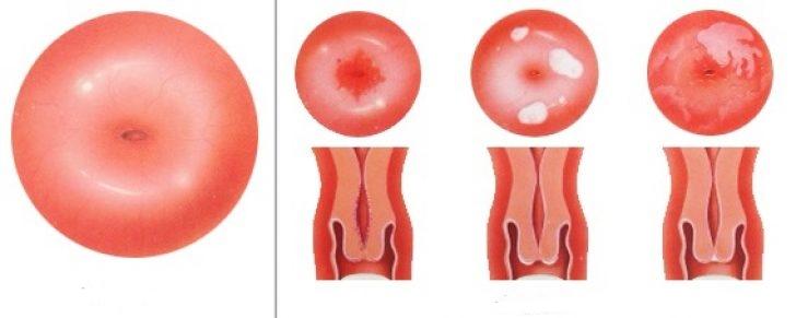 Как проявляется лейкоплакия шейки матки, чем она опасна, и какие методы лечения существуют?
