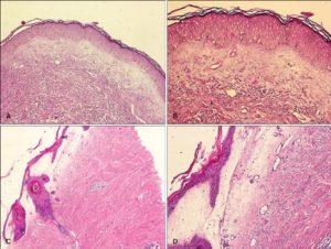 Крауроз вульвы у женщин: причины, симптомы, лечение