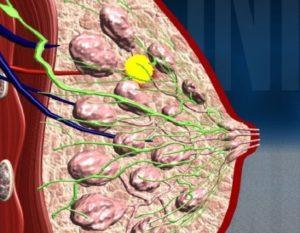 Узловая мастопатия молочной железы