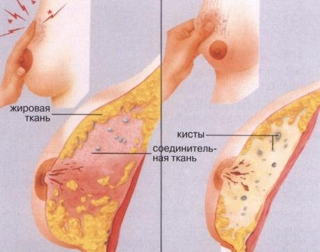 Что такое фиброзно-кистозная мастопатия, причины возникновения