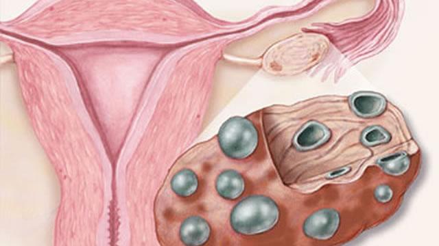 Причины появления синдрома поликистозных яичников, и методы лечения заболевания
