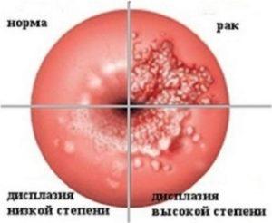 Как проявляется эктопия шейки матки, и какими методами ее лечить?