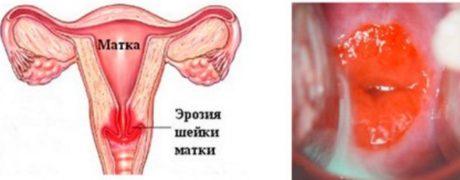 Как проявляется эктопия шейки матки у женщин