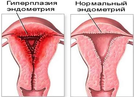 Виды эндометрита матки у женщин (фото и отзывы)