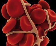 Кровоостанавливающие препараты и народные средства при маточных кровотечениях