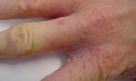 Проявления чесотки на руках и ногах (первые признаки)