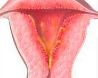 Эндометрит матки у женщин - виды и симптомы заболевания