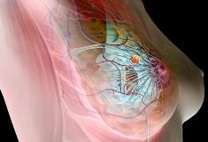 Мастопатия у женщин: причины, симптомы, лечение