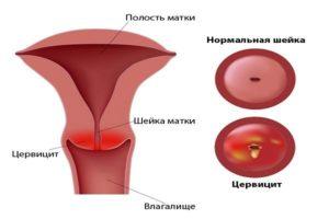 Симптомы экзоцервицита: как проявляется заболевание?