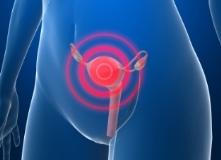 Параметрит - симптомы, диагностика и лечение у женщин