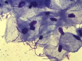 Какую опасность несет Лептотрикс здоровью, и как лечится заболевание?