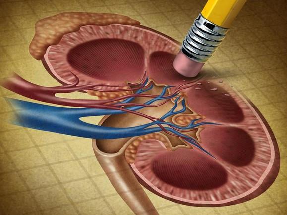 Симптомы каликоэктазии почек, методы диагностики заболевания и лечение
