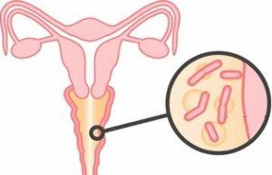 Симптомы бактериального вагиноза и методы лечения заболевания