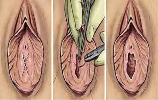 Способы восстановления девственной плевы