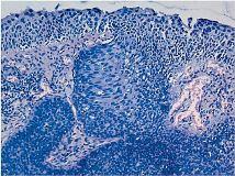 Паракератоз плоского эпителия шейки матки: понятие проблемы и способы ее устранения
