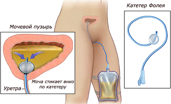Эпицистостома мочевого пузыря у женщин: уход за катетером в домашних условиях