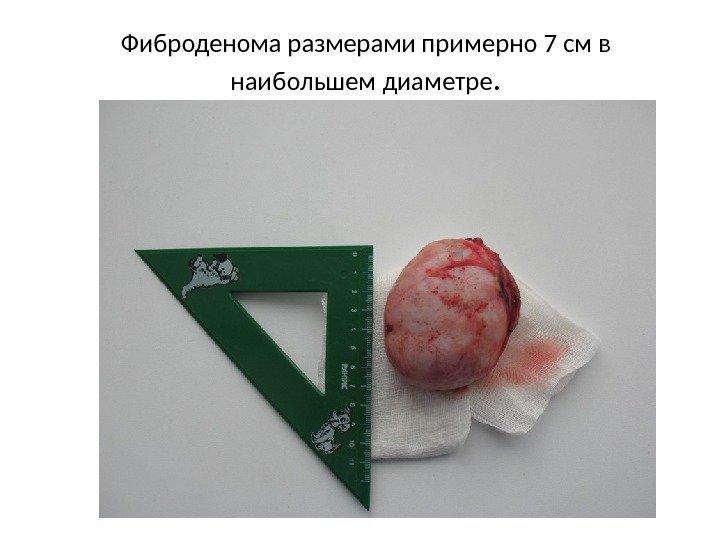 фибролипома мягких тканей