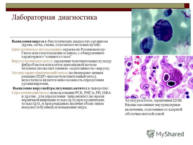 цитомегаловирус норма