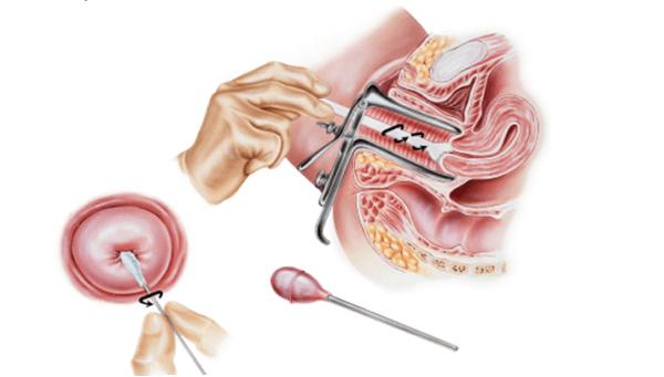 мазок на онкоцитологию - расшифровка результатов