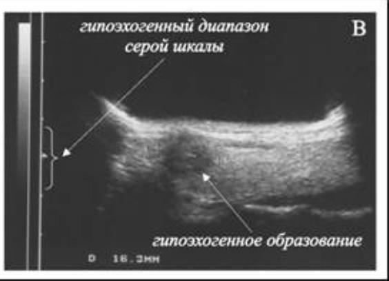 Как анэхогенное образование характеризует состояние молочных желез?